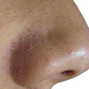 6 Best Treatments For Blackheads