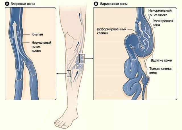 Варикоз вен представляет собой хроническое заболевание сосудов, которое развивается в результате застоя крови (чаще в нижних конечностях). Происходит это из-за несостоятельности сосудистых клапанов, которые в нормальном состоянии пропускают кровь исключительно вверх, от нижних конечностей к сердцу. Застаивающаяся кровь оказывает давление на стенки сосудов, в результате чего они истончаются, теряют эластичность и деформируются, существенно расширяясь. На ногах такого больного невооруженным…