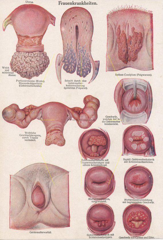 Pin On Venereal Disease