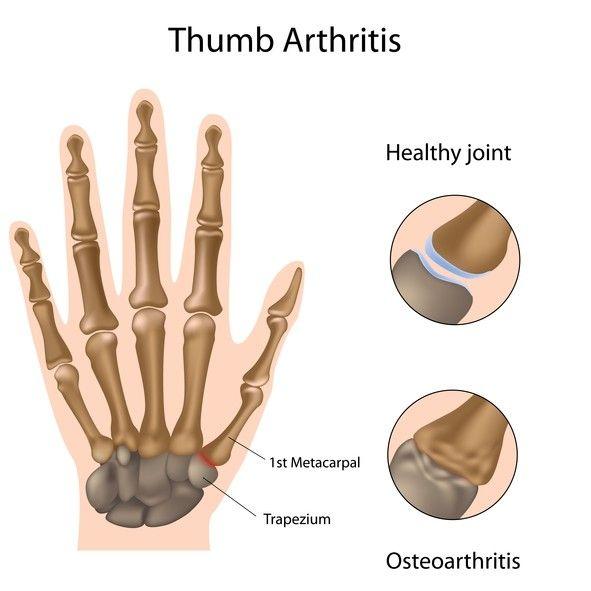 how to stop rheumatoid arthritis pain