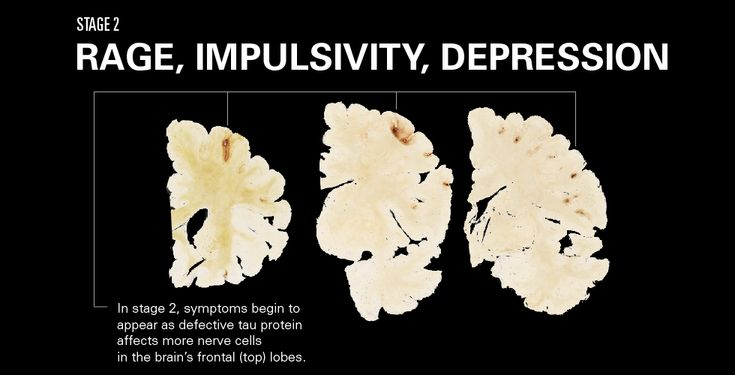 The Four Stages of CTE - protect your brain today with EHT: lynnvinet.buyneriumeht.com