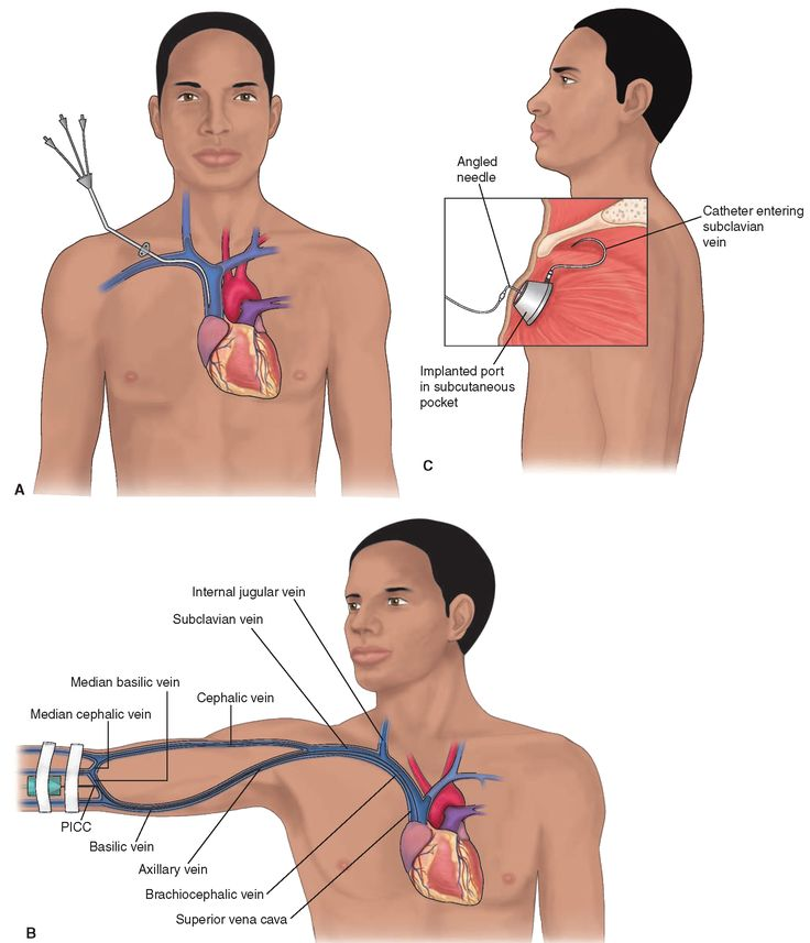 Central lines are used to administer large amounts of fluid, including total parenteral nutrition. (A) A short (nontunneled) triple-lumen percutaneous (through the skin) central venous catheter This catheter is inserted into the subclavian vein and threaded up into the superior vena cava (Lynn, 2008). (B) The peripherally inserted central catheter (PICC) line is inserted into the antecubital space and is sufficiently long to be threaded up into the superior vena cava (Lynn, 2008). (C) The…