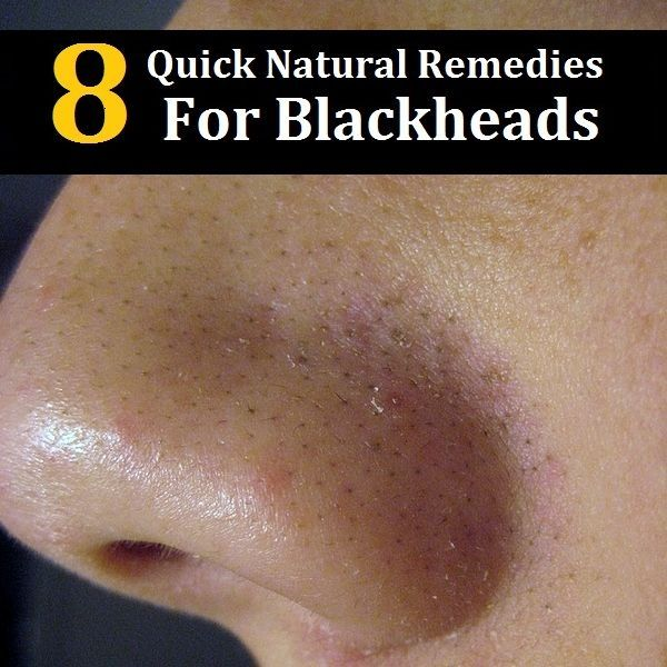 8 Quick Natural Remedies To Get Rid Of Blackheads #NaturalSkinCareRemedies