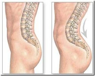 Lose your belly by loosening tip hips, prevents lordosis - 5 stretches to help