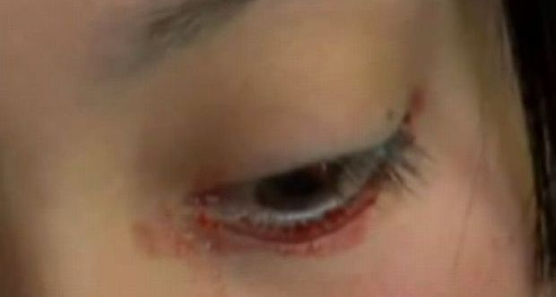 Il mistero della ragazza che piange lacrime di sangue|Guarda il video