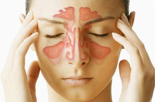 Decongestionarea Sinusurilor – 9 Remedii Naturiste Acasă