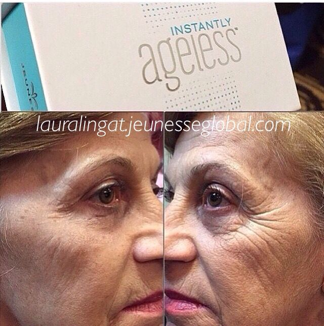AMAZING RESULTS with Instantly Ageless #jeunesse #wrinkles #beauty #beforeandafter