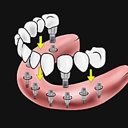 Here's What New Dental Implants Should Cost You - View Pricing & Dentist