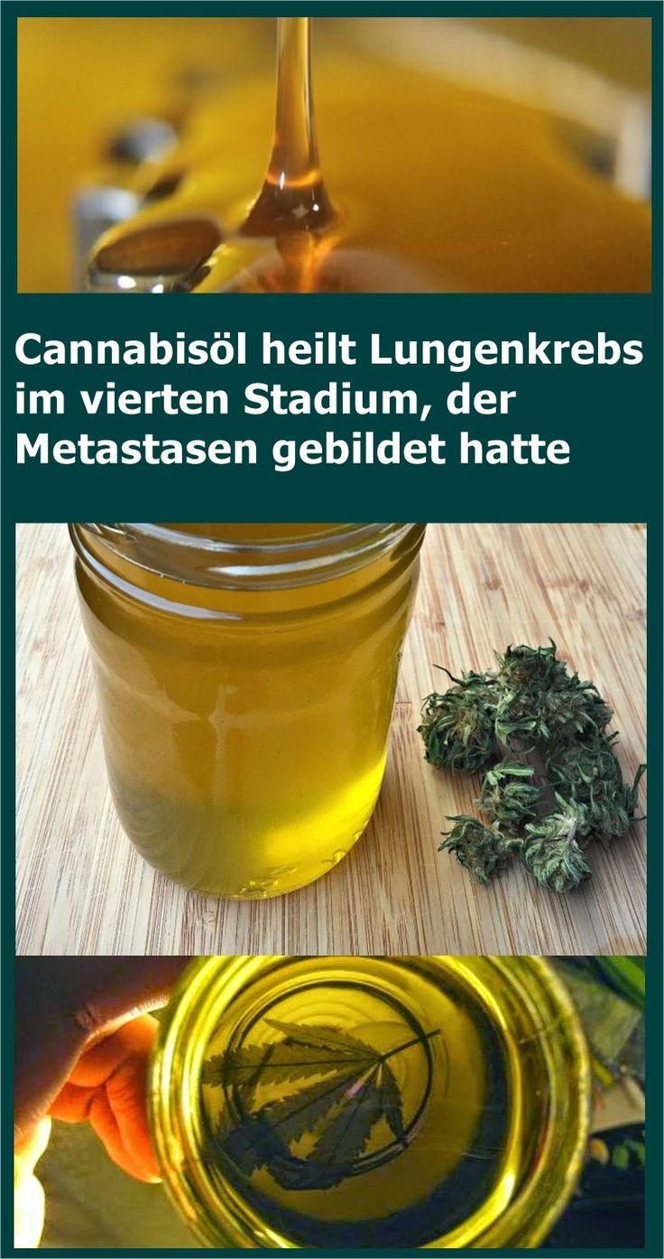 Cannabisöl heilt Lungenkrebs im vierten Stadium, der Metastasen gebildet hatte …
