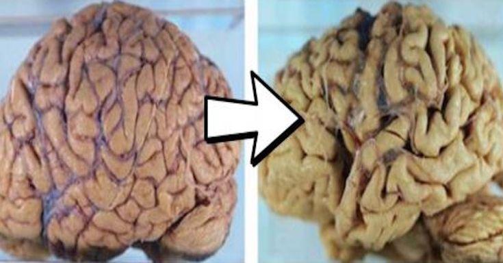 Máte podezření, že vám blízká osoba mentálně upadá, což může být předzvěstí Alzheimerovy choroby? Tento domácí test vám na to dá odpověď.