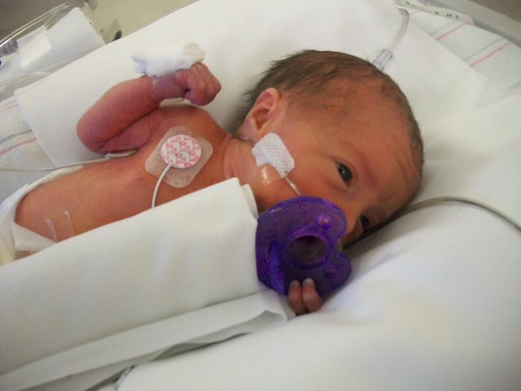nicu baby with premie pacifier | Born December 26, 2009 at 11:33pm via emergency C-Section.