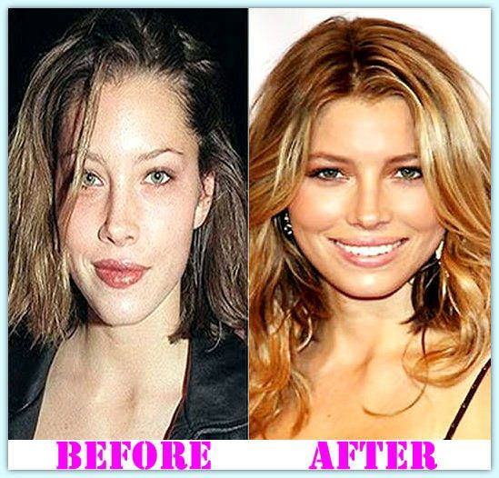 Best Places In The World To Have Plastic Surgery: #JessicaBielPlasticSurgery #JessicaBiel