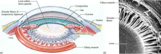 ciliary body and ciliary muscle in eye - Google Search                                                                                                                                                      More