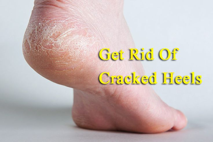 Never Suffer From Cracked Heels with This Home Remedy