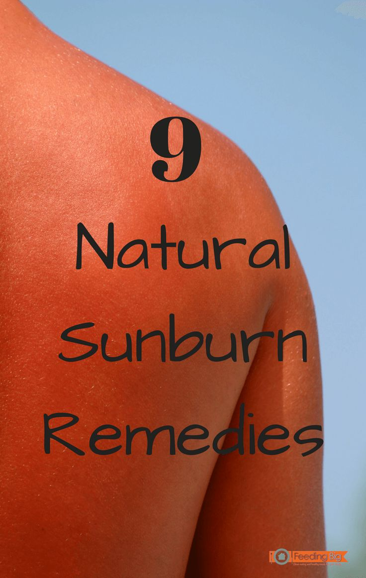 9 natural sunburn remedies. Most are in your home now.