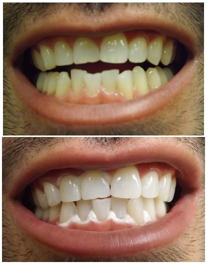 Here is a before and after pictures after a Zoom whitening session. The patient still has the Zoom whitening paste - but you can clearly see that the teeth is at least a couple of shades whiter!  http://reviewscircle.com/health-fitness/dental-health/natural-teeth-whitening
