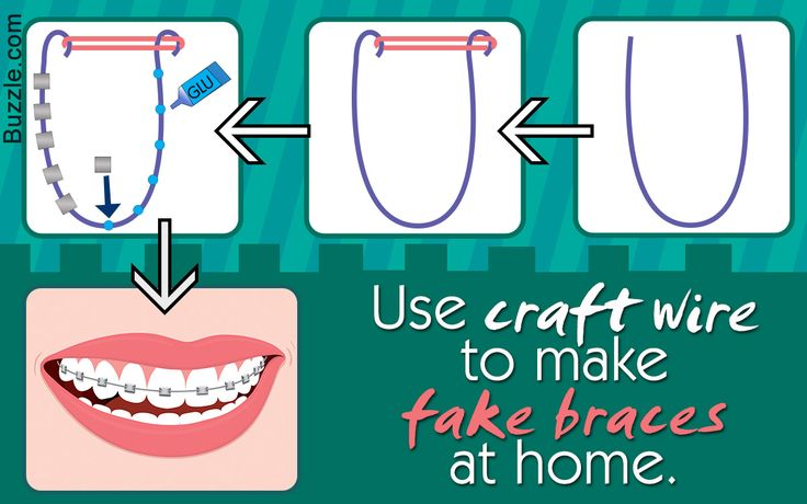 Want to wear fake braces to fool your friends or to look geek chic for a party? Check out how to make fake braces that look real, in this Buzzle article.