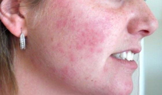 Home Remedies To Treat Rashes On Face