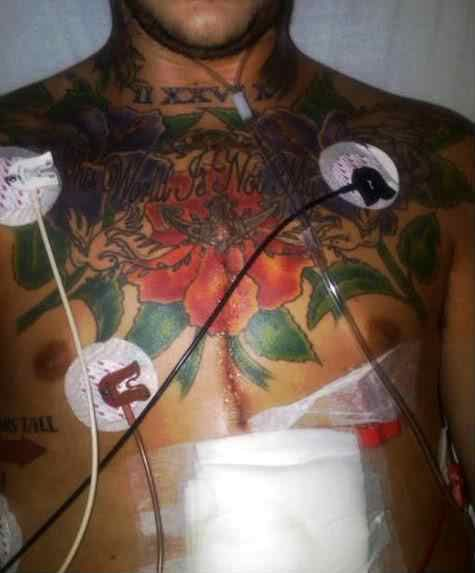 Austin carlile tattoo austin carlile for Heart surgery tattoo
