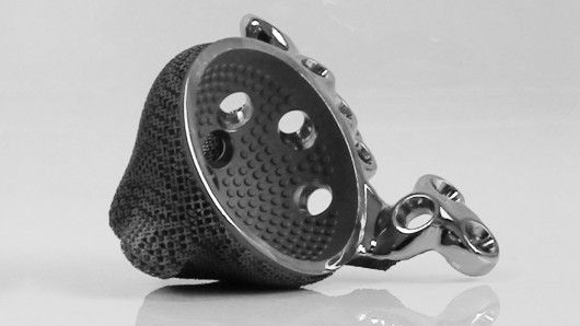 3D-printed hip implant lets teenager walk again By Nick Lavars February 9, 2014 The 3D-printed implant that has given a once wheelchair-consigned teenager the ability  walk on her own