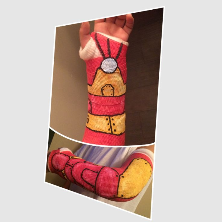 Iron man arm cast