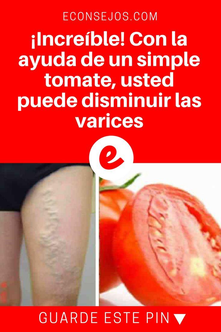 Tomate para varices | ¡Increíble! Con la ayuda de un simple tomate, usted puede disminuir las varices | Este tratamiento para varices es super simple y maravilloso. Y el único ingrediente, usted ya lo tiene en casa: el tomate. ¡Aprenda la receta!