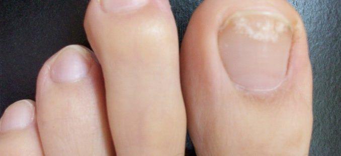 Óleo de orégão  Misture uma colher (de sopa) de azeite em duas gotas de óleo essencial de orégão. Em seguida, aplique na unha infectada. Deixa agir por pelo menos 30 minutos, sem cobrir o local. Certifique-se de que o óleo de orégão usado é original para que a receita tenha os resultados esperados. Feito isso, lave os pés e enxugue com papel toalha. Repita o procedimento uma ou duas vezes por dia, pelo menos por três semanas. O óleo de orégão é um forte antisséptico, antibacteriano…