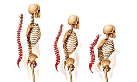 Was ist Osteoporose? Erfahren Sie mehr zu Knochen, Knochendichte und Entwicklung der Krankheit. Worin bestehen Risiken? Welches ist die richtige Therapie?