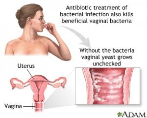 Learn About Vaginal Yeast Infections, Causes, Symptoms And Best Treatment