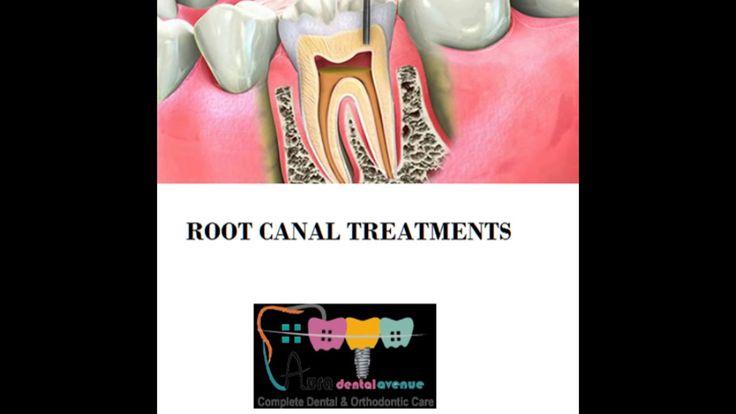 Dentist in Indirapuram - Aura Dental Avenue , Indirapuram dental treatments