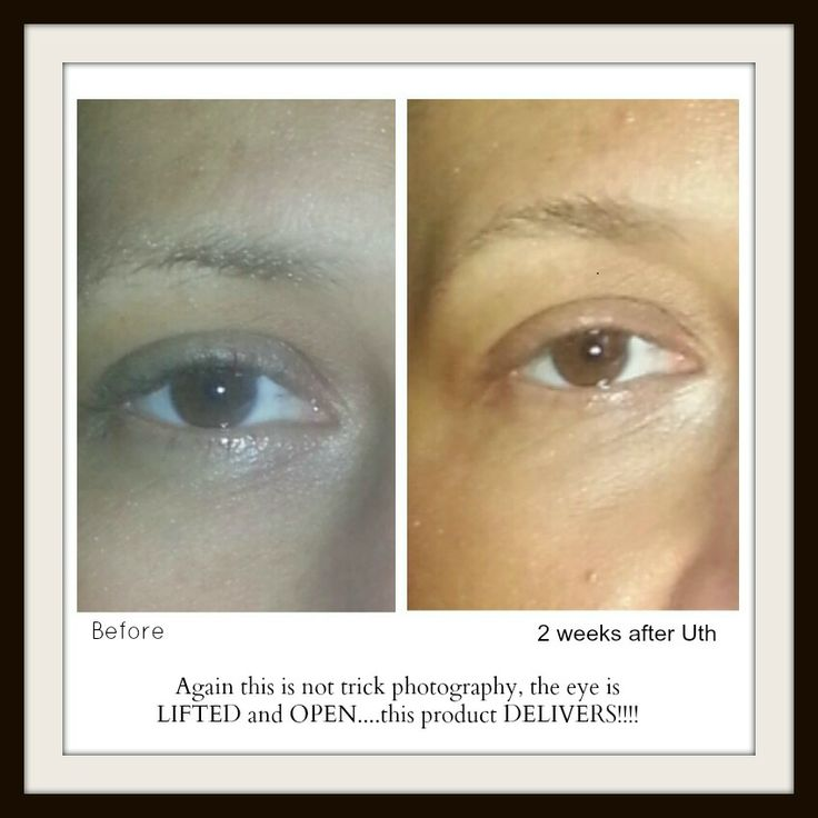Photo's don't lie...the results are REAL $105 #nobotox #skincare