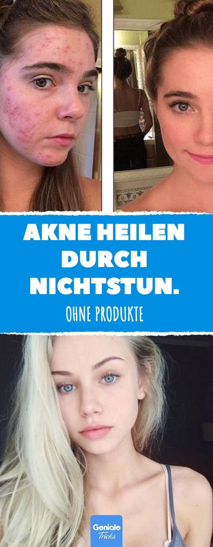 Akne heilen, indem Sie nichts tun. # Akne #pimples #mitesser #reine Haut #hautprobleme #h