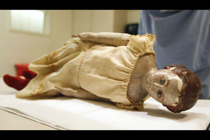 Two 150-Year-Old Civil War Dolls Get X-Rayed at VCU Medical Center for Signs of Smuggling