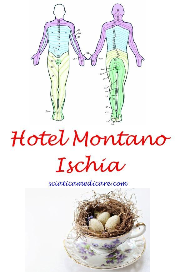 La Scogliera Ischia Ischias symptome, Ischias und