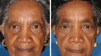 The dramatic effect of smoking on skin aging