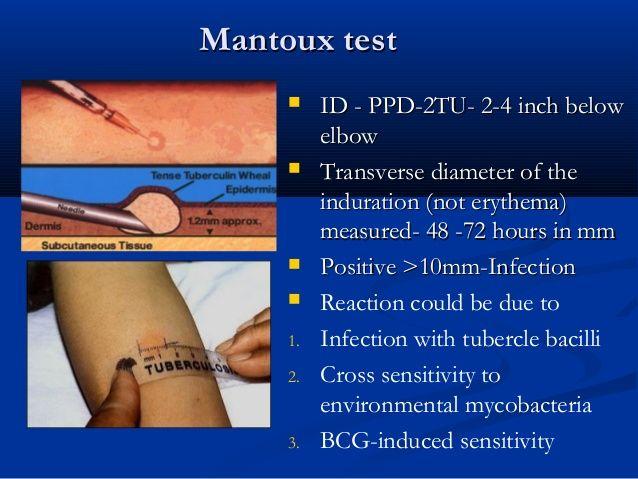 Mantoux test / PPD