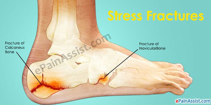 Pain on the outer side of the foot is known as Lateral Foot Pain. Learn about the medical conditions that can cause pain on outside of foot, its diagnosis, treatment, home remedies and exercises.