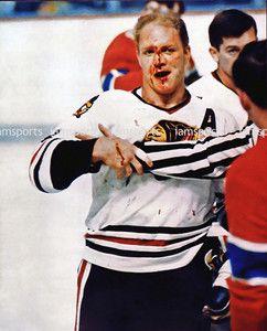 blackhawks fight  | Bobby Hull Chicago Blackhawks Fight Bloody 8x10 Photo | eBay