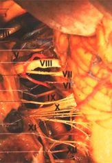 Akustikusneurinom - gutartiger Hirntumor, keine Metastasen, nicht vererbbar, nicht ansteckend, wächst langsam, Ursachen nicht bekannt.