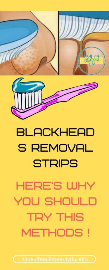 Blackheads Removal Hacks #skin #skincare #blackhe…
