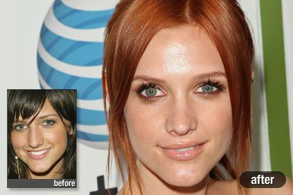 Top 10 Worst Celebrity Plastic Surgeries - todayvibes.com
