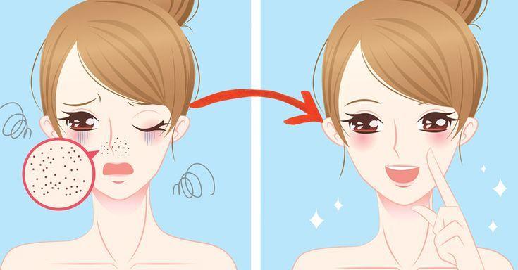 Genialer Trick: So einfach wirst du Mitesser auf der Nase los!