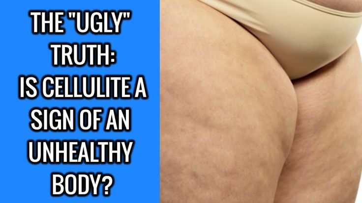 The Ugly Truth- Is Cellulite A Sign Of An Unhealthy Body?