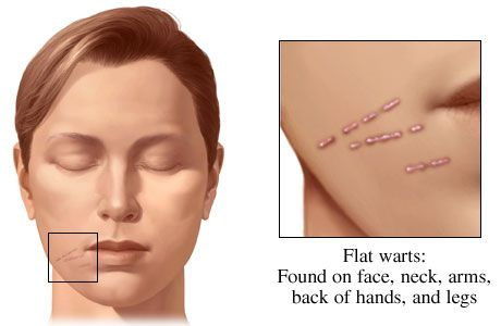 Pictures, Cure and Remedies for Warts on Face, Feet, Palm e.t.c, Heal your Warts now