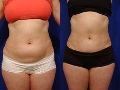 Confira exercícios, dicas e dieta para perder barriga em 1 semana. - Aprenda a preparar essa maravilhosa receita de Perca a barriga em 1 semana