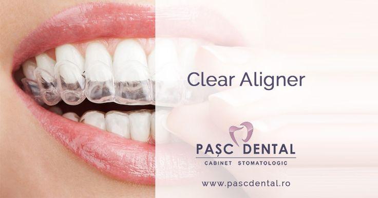 Aparatele dentare sunt de multe ori un accesoriu al zâmbetului, și pot fi purtate cu cea mai atractivă siguranță de sine, Clear Aligner este o alternativă..