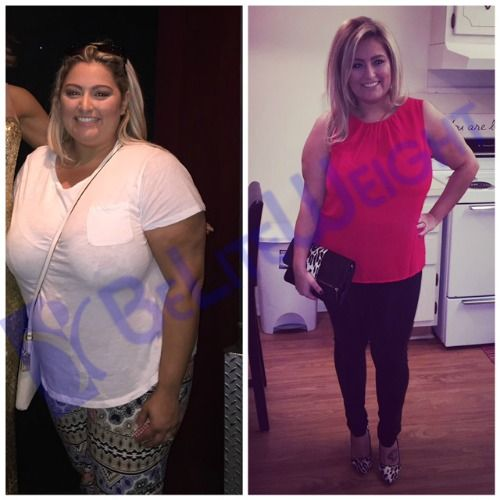 Gastric surgery vsg bypass sleeve before after