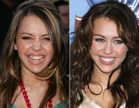 Here is a selection of celebrities who have also had veneers (you can click on the pics to make them bigger) CHERYL COLE: before and after DEMI MOORE: before and after KATY PERRY : before and after…