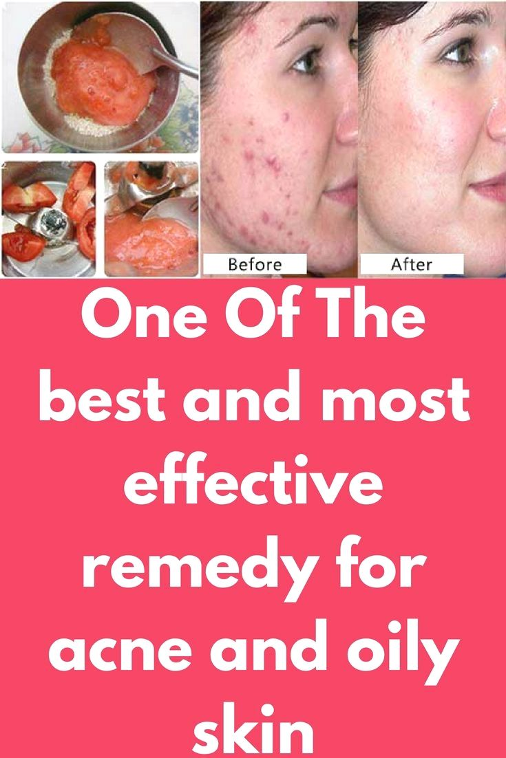 One Of The Best And Most Effective Remedy For Acne And Oily Skin