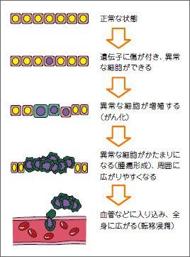 がん(悪性腫瘍)の特徴に以下の3つがあげられています。   1.自律性増殖:がん細胞はヒトの正常な新陳代謝の都合を考えず、自律的に勝手に増殖を続け、止まることがない。  2.浸潤と転移:周囲にしみ出るように広がる(浸潤)とともに、体のあちこちに飛び火(転移)し、次から次へと新しいがん組織をつくってしまう。  3.悪液質(あくえきしつ):がん組織は、他の正常組織が摂取しようとする栄養をどんどん奪ってしまい、体が衰弱する。  良性の腫瘍は上記の「自律性増殖」をしますが、「浸潤と転移」「悪液質」を起こすことはありません。増殖のスピードも、悪性腫瘍に比べるとゆっくりしています。腫瘍の大きさや発生した場所によっては、症状が起こることもありますが、外科的に完全に切除すれば再発することはありません。